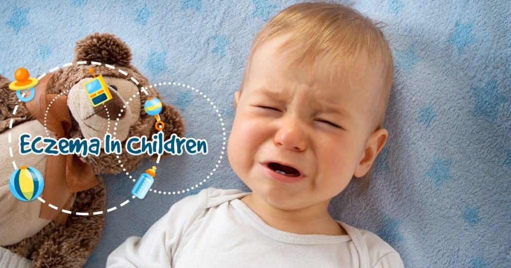 eczema in children