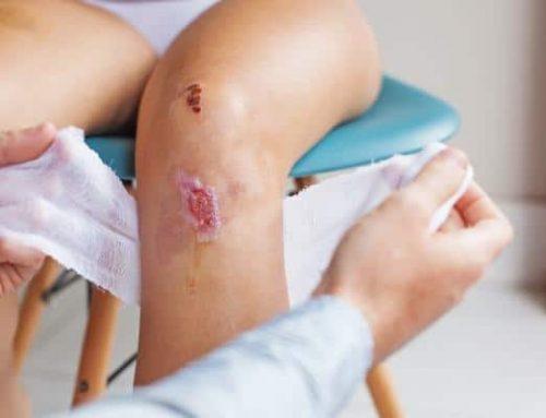 Cellulitis Skin Infection in Children